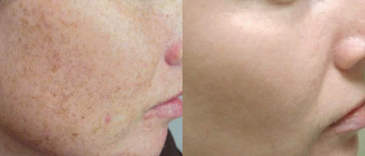 CO2 Fractional Laser Treatment in NYC