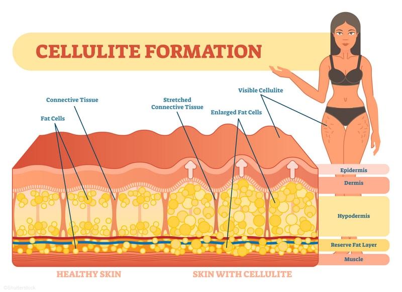 CSS Cellulite Info