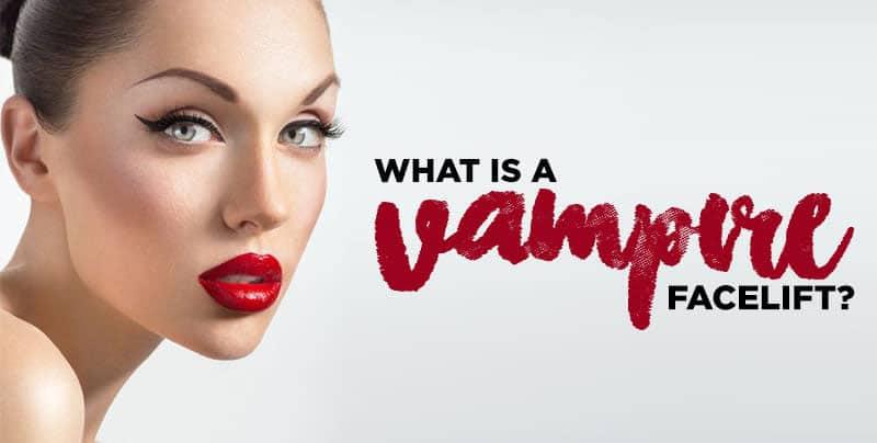 why-vamp2