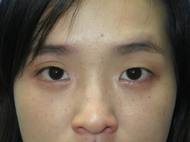 Eyelid Surgery Before
