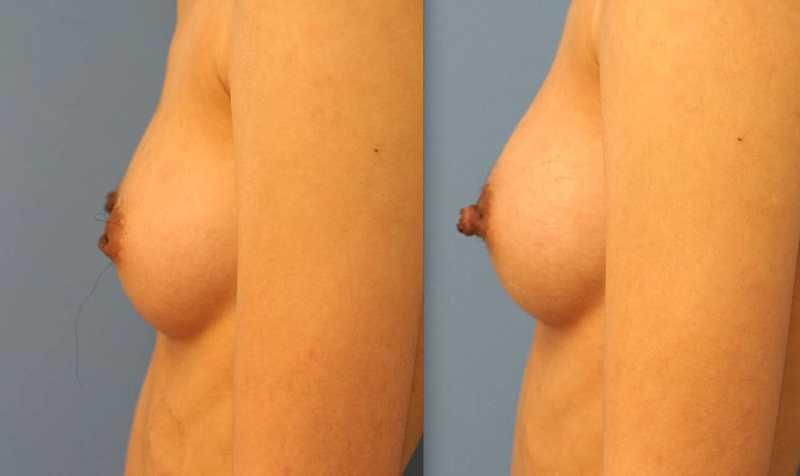 Inverted Nipple Repair NYC | Dr. Lao