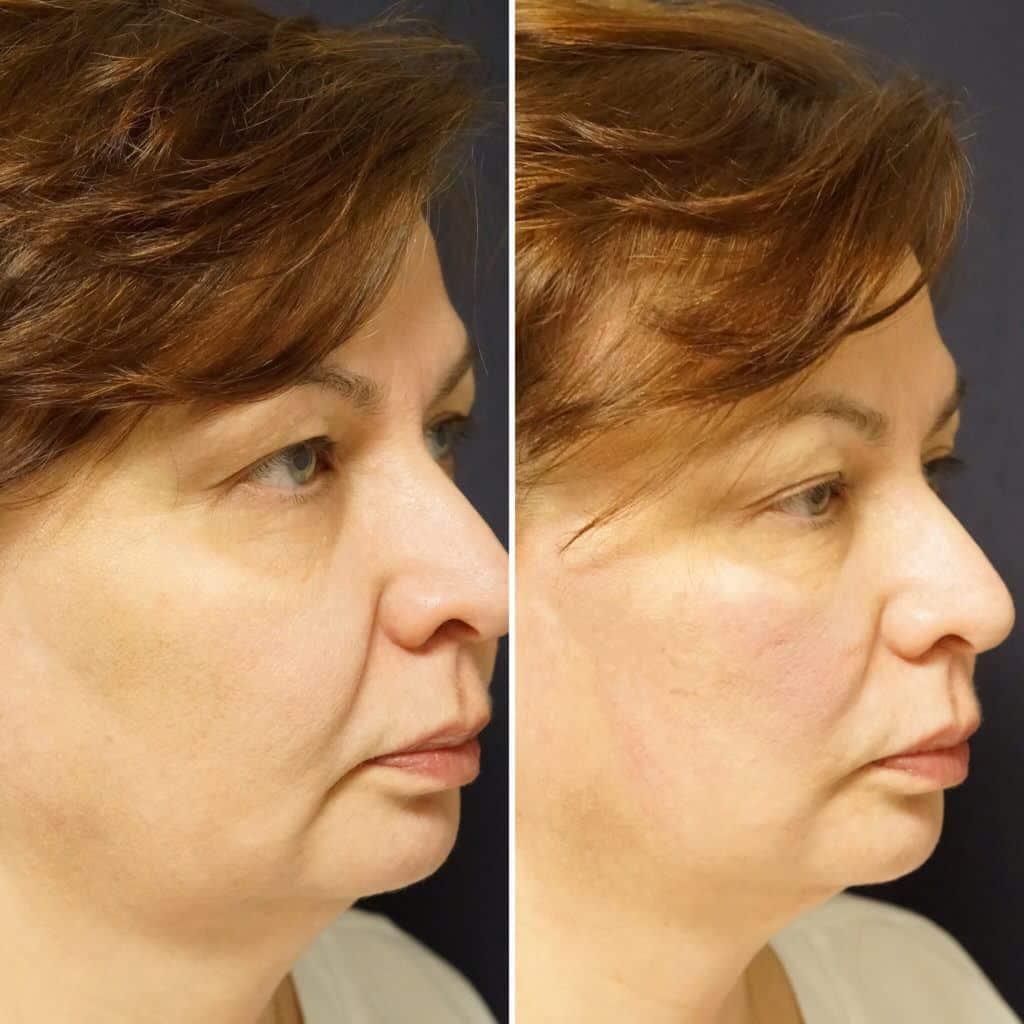 Threadlifts | Skintology New York City | Medical Spa NY