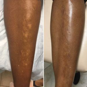Vitiligo Treatment Before & After NYC