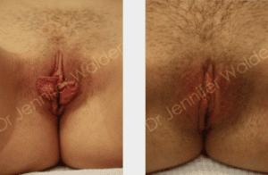 Labiaplasty Procedure in NYC | Vaginal Rejuvenation NYC | Dr. Walden