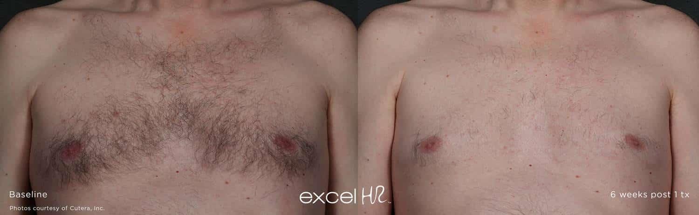excel hr hair chest 1