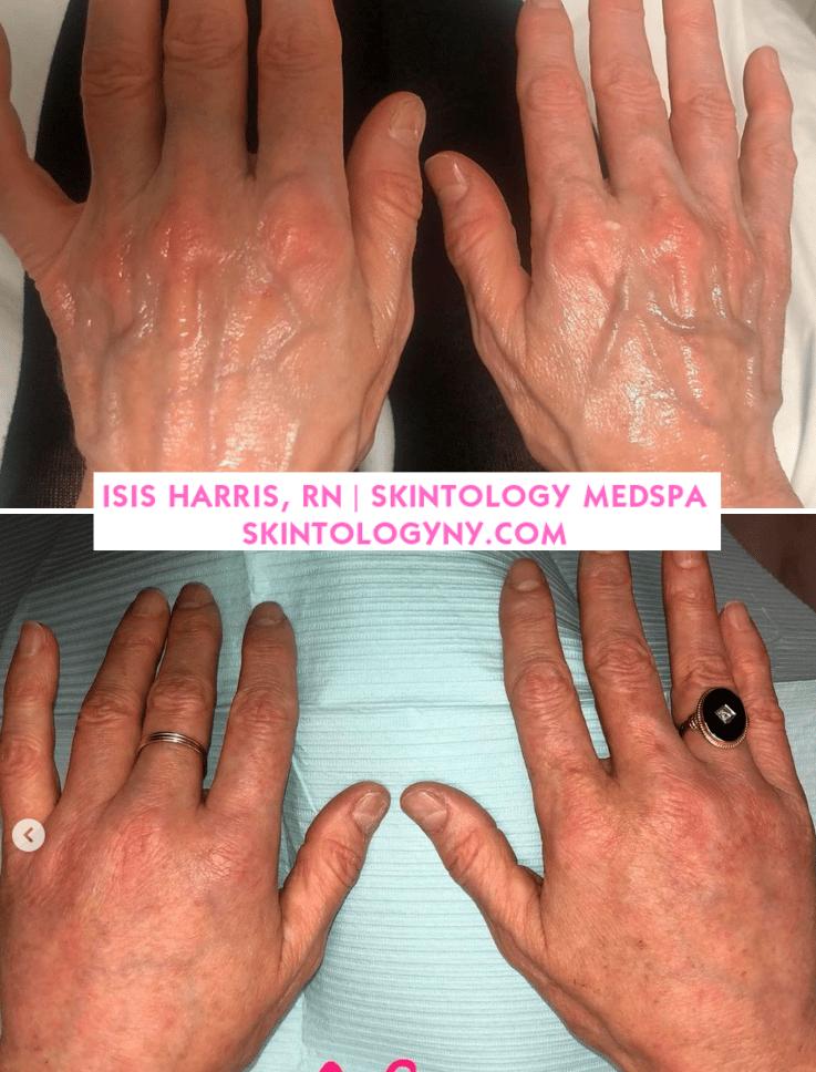radiess hands by isis harris rn