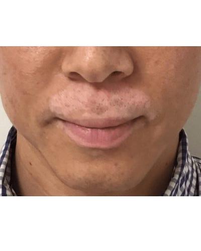 Permanent Make-up for Hypopigmentation