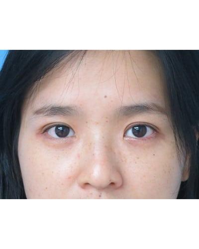 Upper Blepharoplasty